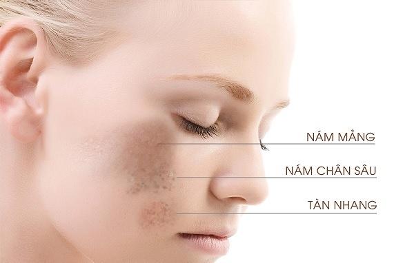 cách khắc phục nám sạm tàn nhang trên da, cách trị tàn nhang trên mặt, cách trị nám tàn nhang lâu năm, cách trị nám da và tàn nhang, cách trị nám tàn nhang tốt nhất, cách khắc phục da bị tàn nhang, cách khắc phục da sạm nám, cách khắc phục nám da,