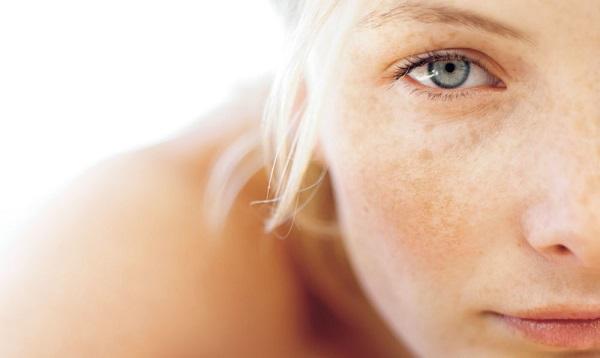 Bí quyết giúp nàng trị nám da sau sinh tự nhiên nhanh chóng lấy lại làn da tươi trẻ