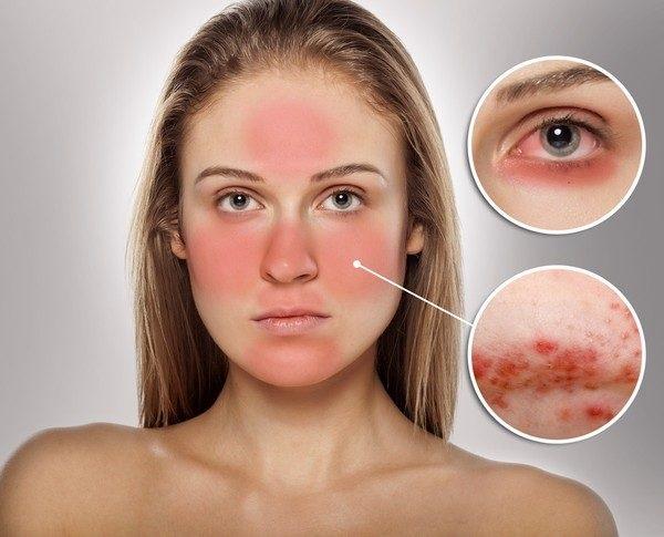 cách chăm sóc da mỏng và yếu, mặt nạ cho da mỏng và độ, cách chăm sóc da mỏng yếu, cách chăm sóc da mặt mỏng yếu, da bị mỏng yếu phải làm sao, chăm sóc da mỏng nổi mạch máu, chăm sóc da mỏng yếu, cách chăm sóc da mỏng nhạy cảm, cách chăm sóc da bị mỏng và yếu, chăm sóc da mỏng và nhạy cảm, chăm sóc da mặt mỏng, chăm sóc da mặt mỏng nhạy cảm