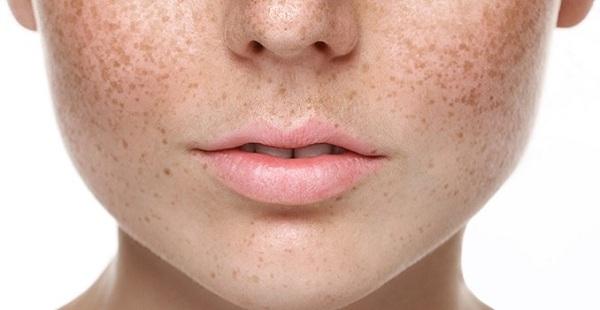 Nano mầm đậu nành Flagold hỗ trợ cải thiện tình trạng nám, sạm ở nữ giới