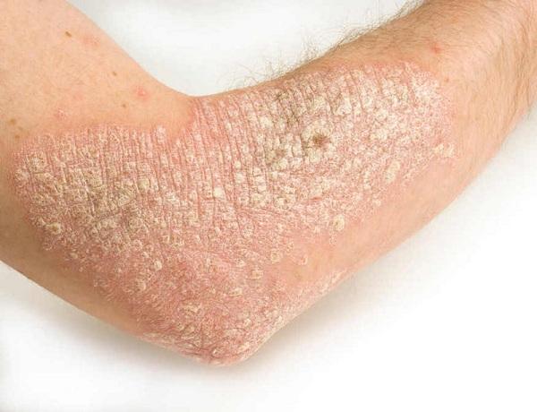 Tin vui cho người bị vẩy nến: Tác dụng của Isoflavon trong hỗ trợ điều trị bệnh vẩy nến cực hiệu quả