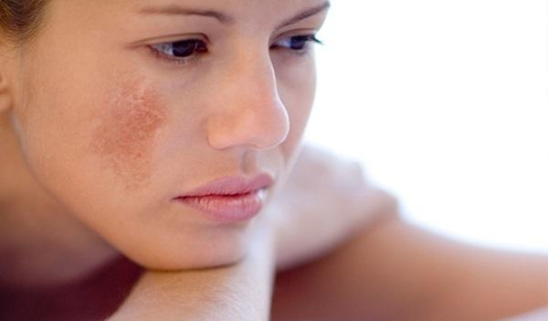 Cách chăm sóc da mặt bị nám hàng ngày đơn giản mà hiệu quả