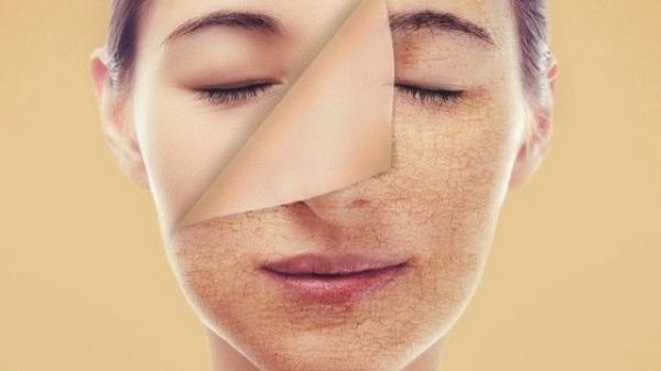 3 Cách chăm sóc da mặt khô sạm từ bên trong và bên ngoài cực hiệu quả