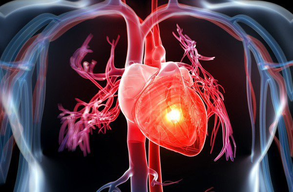 isoflavon mầm đậu nành ngăn ngừa bệnh tim mạch, isoflavon ngăn ngừa bệnh tim mạch, isoflavon và bệnh tim mạch, isoflavon có tác dụng gì với bệnh tim mạch, isoflavon phòng bệnh tim mạch, isoflavon mầm đậu nành phòng ngừa bệnh tim mạch
