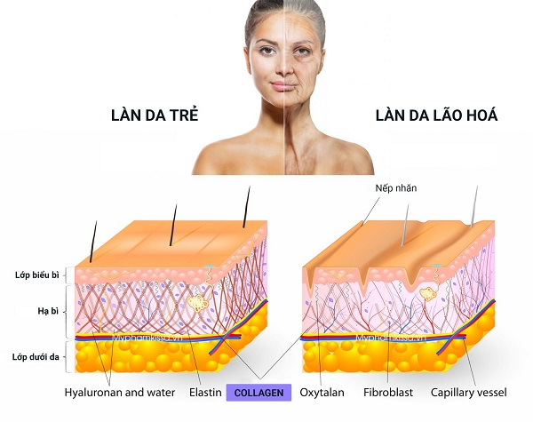 cách phục hồi da bị lão hoá, phục hồi da bị lão hóa, phục hồi làn da bị lão hóa, cách phục hồi da bị lão hóa