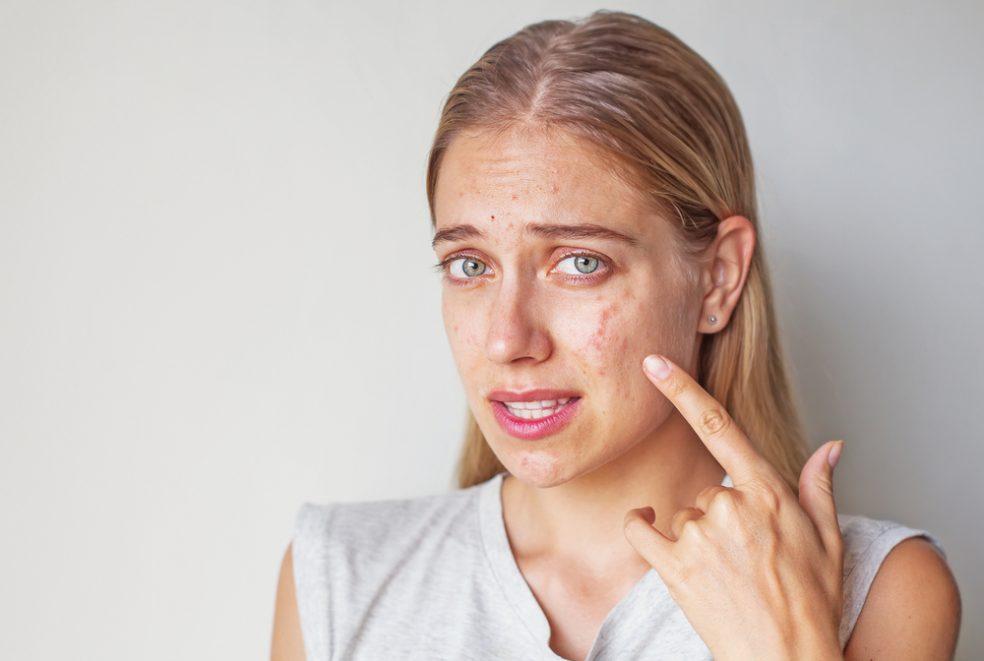 Mụn nội tiết là gì? Nguyên nhân gây ra mụn nội tiết và cách điều trị