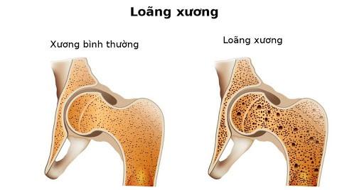 mam-dau-nanh-co-tac-dung-ngua-loang-xuong