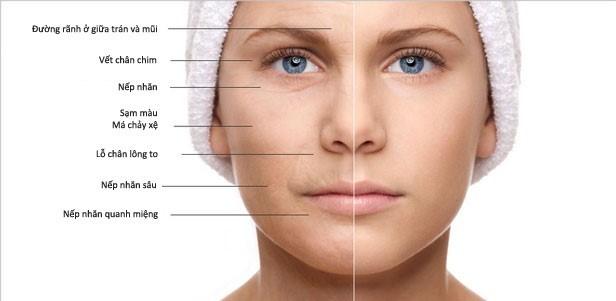 Chúng ta có thể chống lão hóa da mặt bằng cách nào?