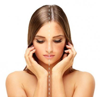 Khi nội tiết tố nữ kém đi, nám, tàn nhang sẽ nhân cơ hội phát triển mạnh mẽ trên bề mặt da